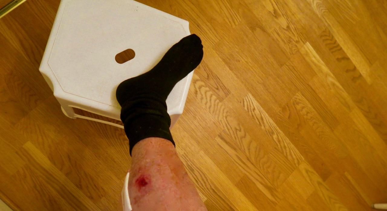 Såret hade inte läkt så det blev en tur upp till vårdcentralens jourläkarmottagning.