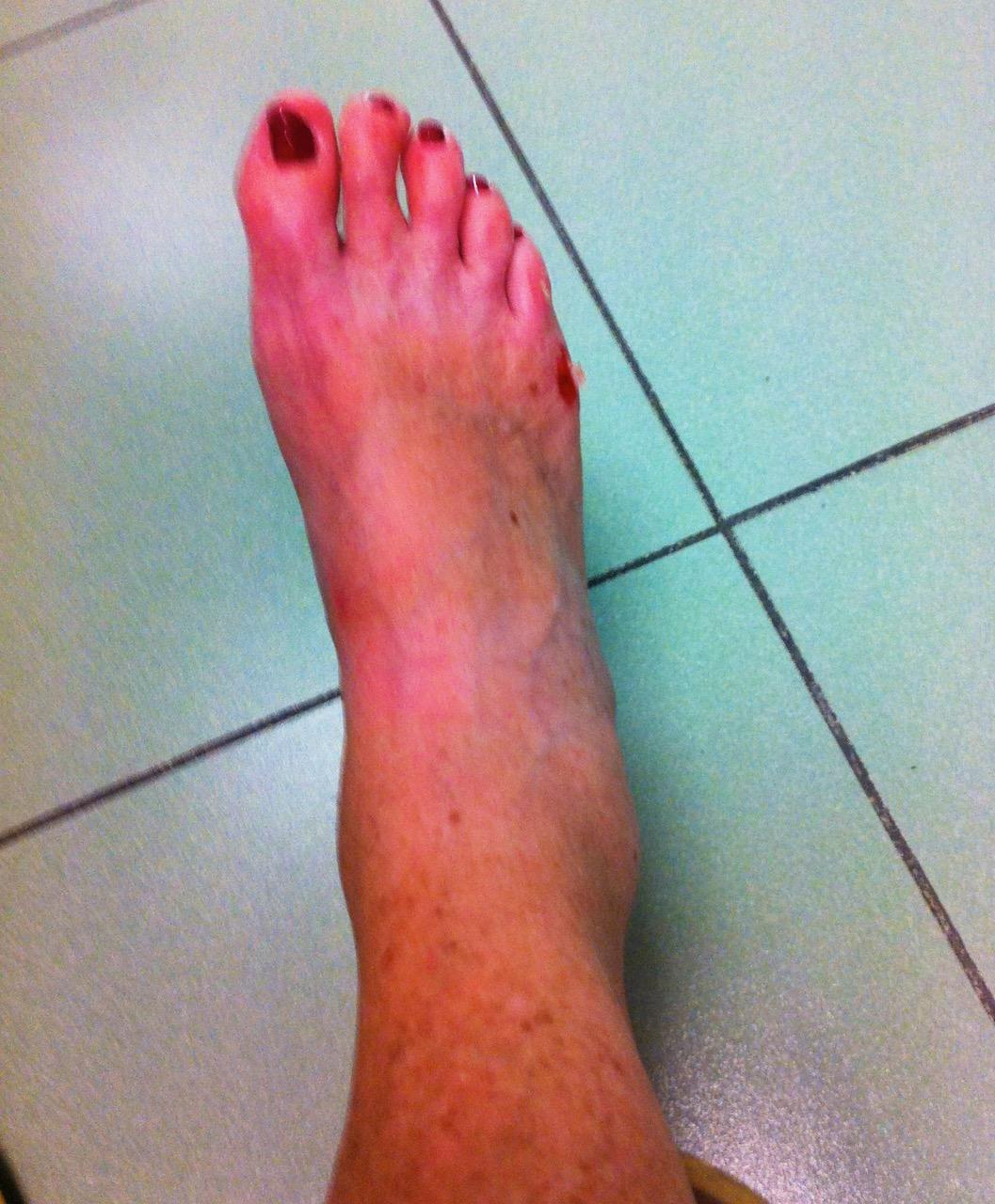 En rejält stukad fot.